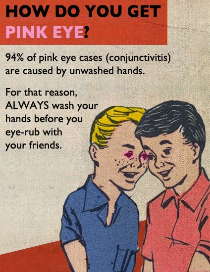 pinkeye from unwashed hands